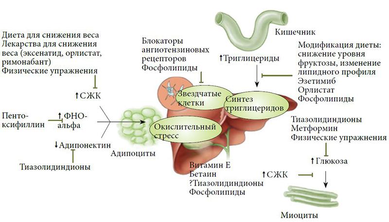 Жировая Инфильтрация Печени Лечение И Диета. Диагностика и лечение жирового гепатоза печени
