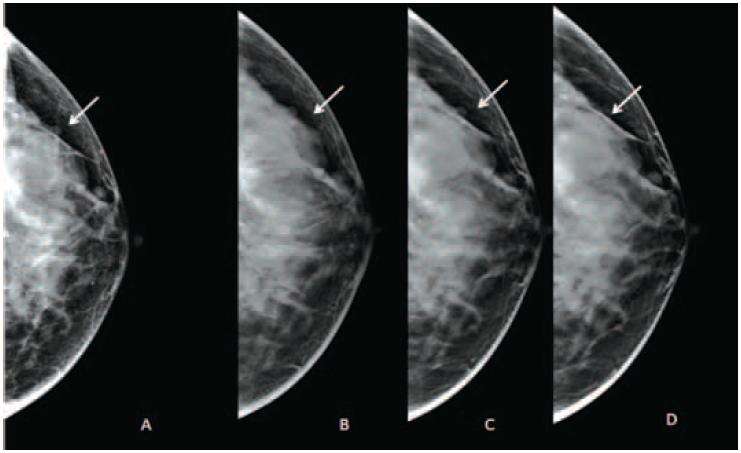 Маммография с контрастом