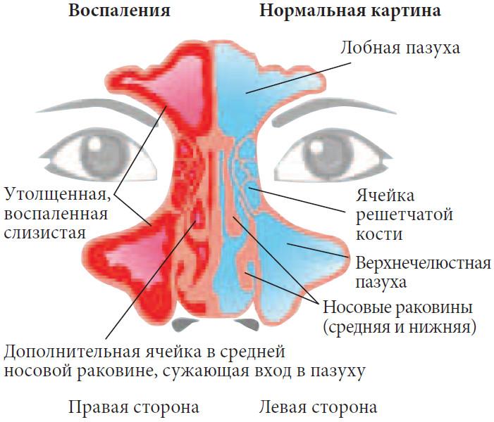 Воспаление околоносовых пазух