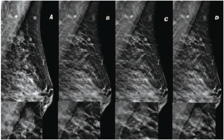 Единичные кальцинаты в молочной железе на маммографии