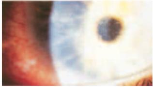 Использование Вигамокса в лечении микробных кератитов, явившихся ...