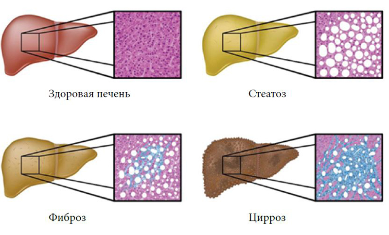 применялось фиброз печени и гомеопатия имеет обязанность