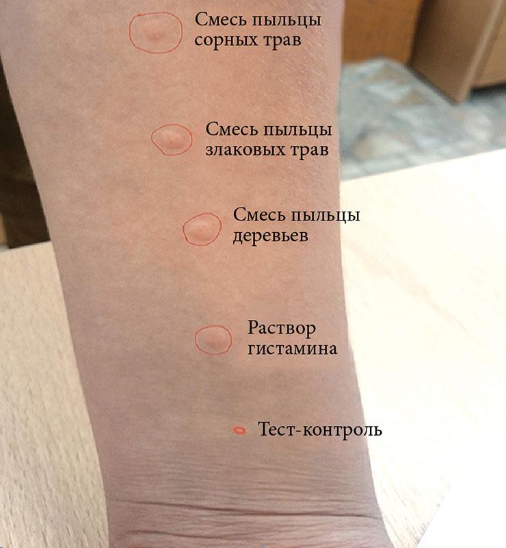 Сравнение асит терапии и алт для лечения аллергии | лечение.