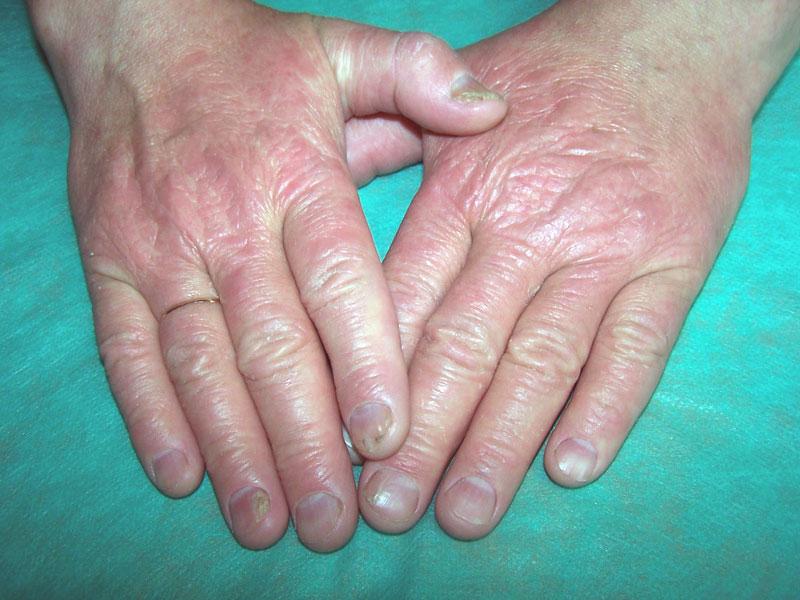 Продолжительность жизни людей с псориазом