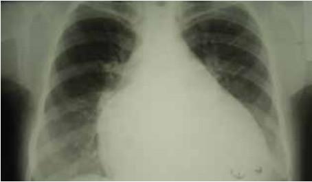 Беременность и рентген - Вопрос гинекологу - 03 Онлайн