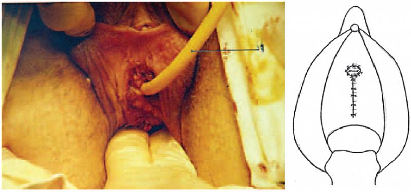 Рис. 5. Перемещенное наружное отверстие уретры и ушитая рана влагалища: сле