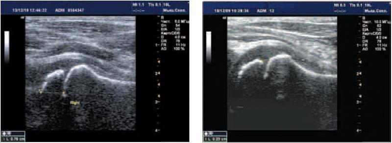 Уз анатомия коленного сустава бальзам для лошадей для суставов коленной чашечки